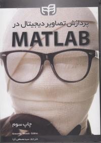 پردازش تصاویر دیجیتال در MATLAB